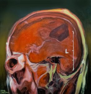 Title: Head Study 64 Artist: Veronica Huacuja Medium: Oil and acrylic on paper Size: 48.5 x 49 x 0.1 cm Year: 2018 This is a portrait of an unknown person. The artwork reveals an intrusive code made to the body by a radiological medical machine. #itondo, #saatchiart, #1340gallery, #artandMRI, #artandradiology , #artandscience , #artandmedicine, #artandpharma #Humanlandscape, #humanbody, #VeronicaHuacuja, #noirpainting