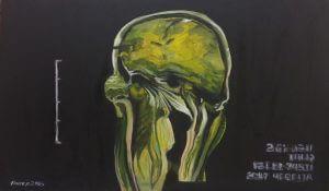 Title: Head Study 65 Artist: Veronica Huacuja Medium: Oil on paper Size: 43.5 x 25 x 0.1 cm Year: 2018#itondo, #saachiart, #humanlanscape, #artandxrays, #portrait, #artandradiology, #artandtechnology, artandscience, #artandbones, #blackpainting #Bonefracture, #oilonpaper, #portrait, #veronicahuacuja #artcollector, #artandscience, #artandtechnology, #artandillness, #artandmentalillness